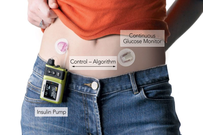 Artificial Pancreas - a diabetes cure?